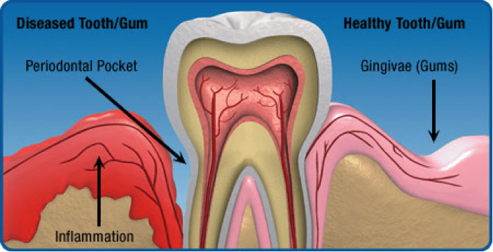 hygiene_and_gum_disease