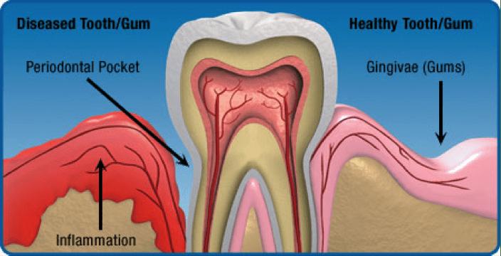 hygiene_and_gum_disease